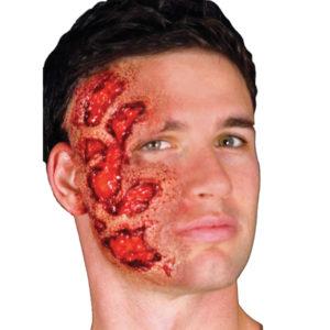 protesis-cara-quemada