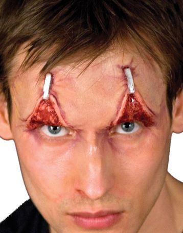 protesis-parpados-grapas